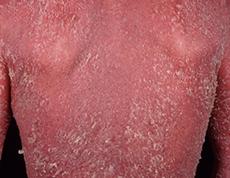 乾癬 液状